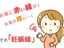 妊娠中にお腹に線が!お腹痒い!というママ必見。それ「妊娠線」です