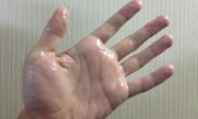 手汗で悩んでいる方へ、手掌多汗症の僕が実施している対策とアドバイス